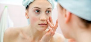 Bright Eyes – Conceal Your Under Eye Dark Circles Effectively