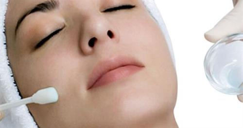 8 Reasons for Getting Chemical Peels