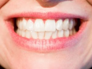 Tips to Keep Your Teeth White After Whitening