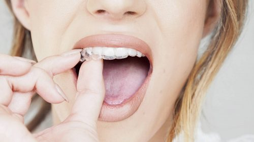 6 Tips To Keep In Mind After Getting An Invisalign Treatment