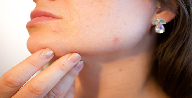 Acne Laser Treatment: London's Biggest Questions Answered