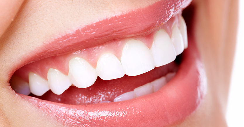 Tips for a Dazzling White Smile