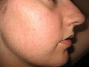 Bumpy Skin