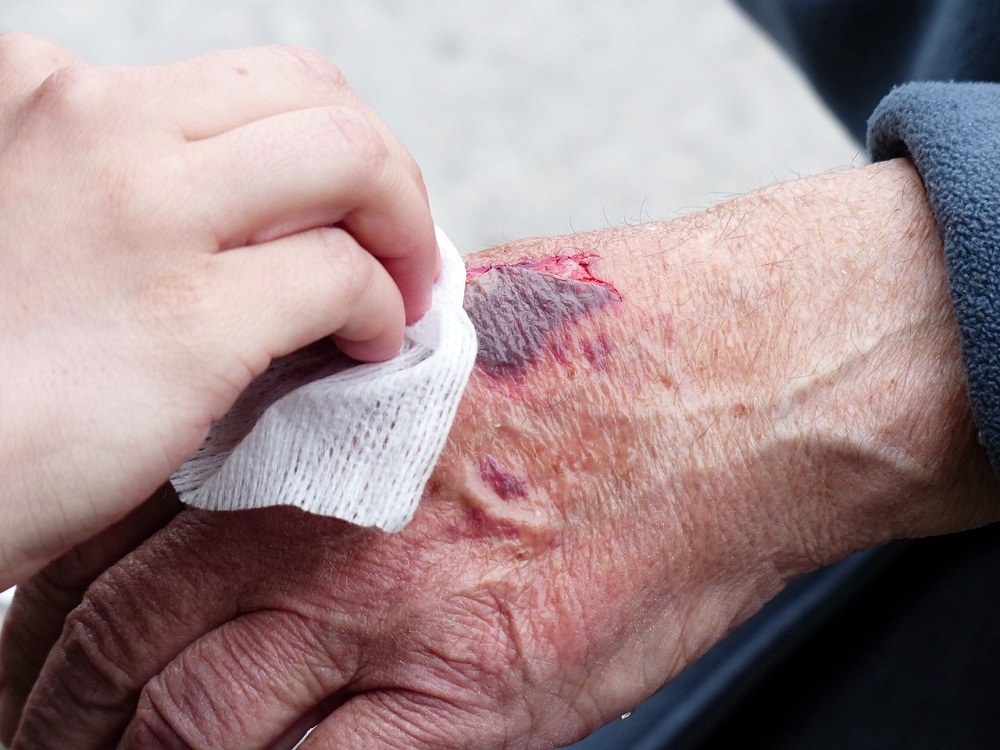 How To Treat The 5 Most Common Hand Injuries